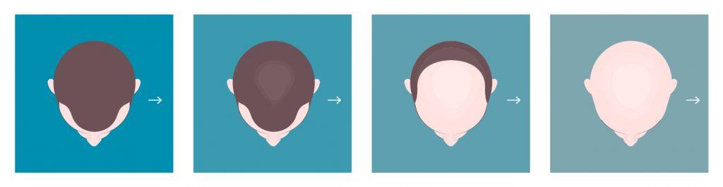 Eine Grafik zu erblich bedingten Haarausfall behandeln.