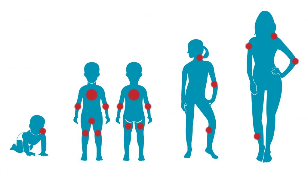 Menschen verschiedener Altersgruppen mit markierten Hautstellen an denen Neurodermitis entstehen kann.