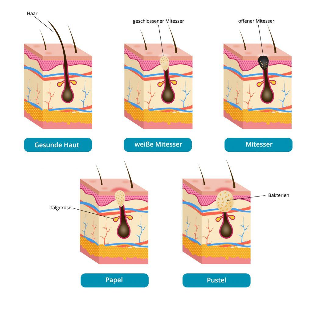 Verschiedene Akneformen in einer Grafik